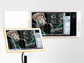Surgical navigation system paired with on-wall information display hub