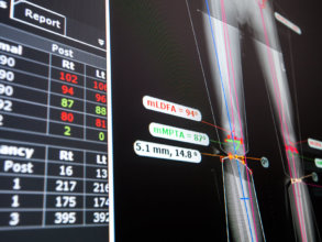 Intelligent measuring and templating tools help surgeons to quickly plan even complex procedures for deformity correction, pediatric, trauma, spine, upper limb, foot & ankle procedures