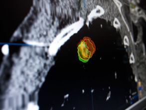 Contours of a lung tumor as automatically outlined by iPlan RT software