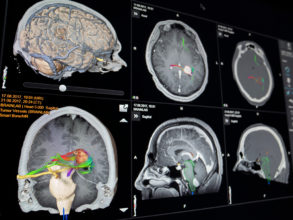 Smart Anatomy Views Cranial automatically show the most important brain anatomical information in 2D and 3D