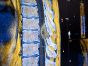 Spine workflow for navigated spine surgery