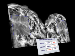 Room-based system enables instant X-Ray imaging for position verification based on internal patient anatomy