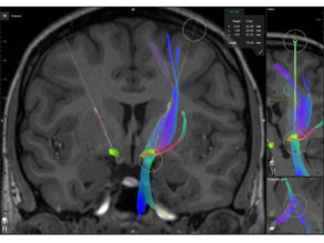 Software application that creates surgical plans for trajectories in neurosurgery