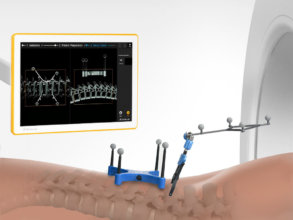 Seamless image registration with Universal AIR for navigated spine surgery