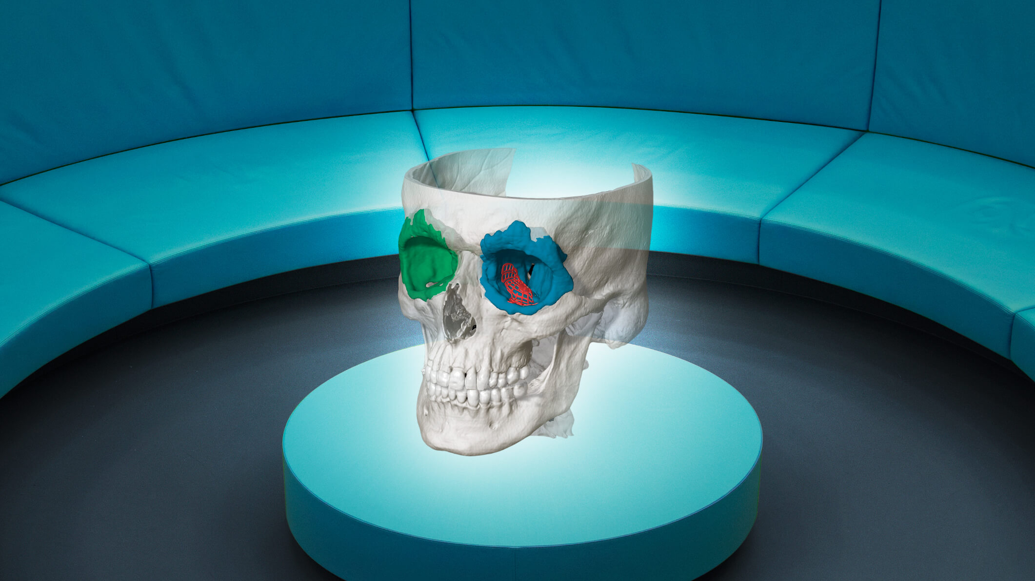 Augmented reality view of the planning of a craniomaxillofacial (CMF for short) case
