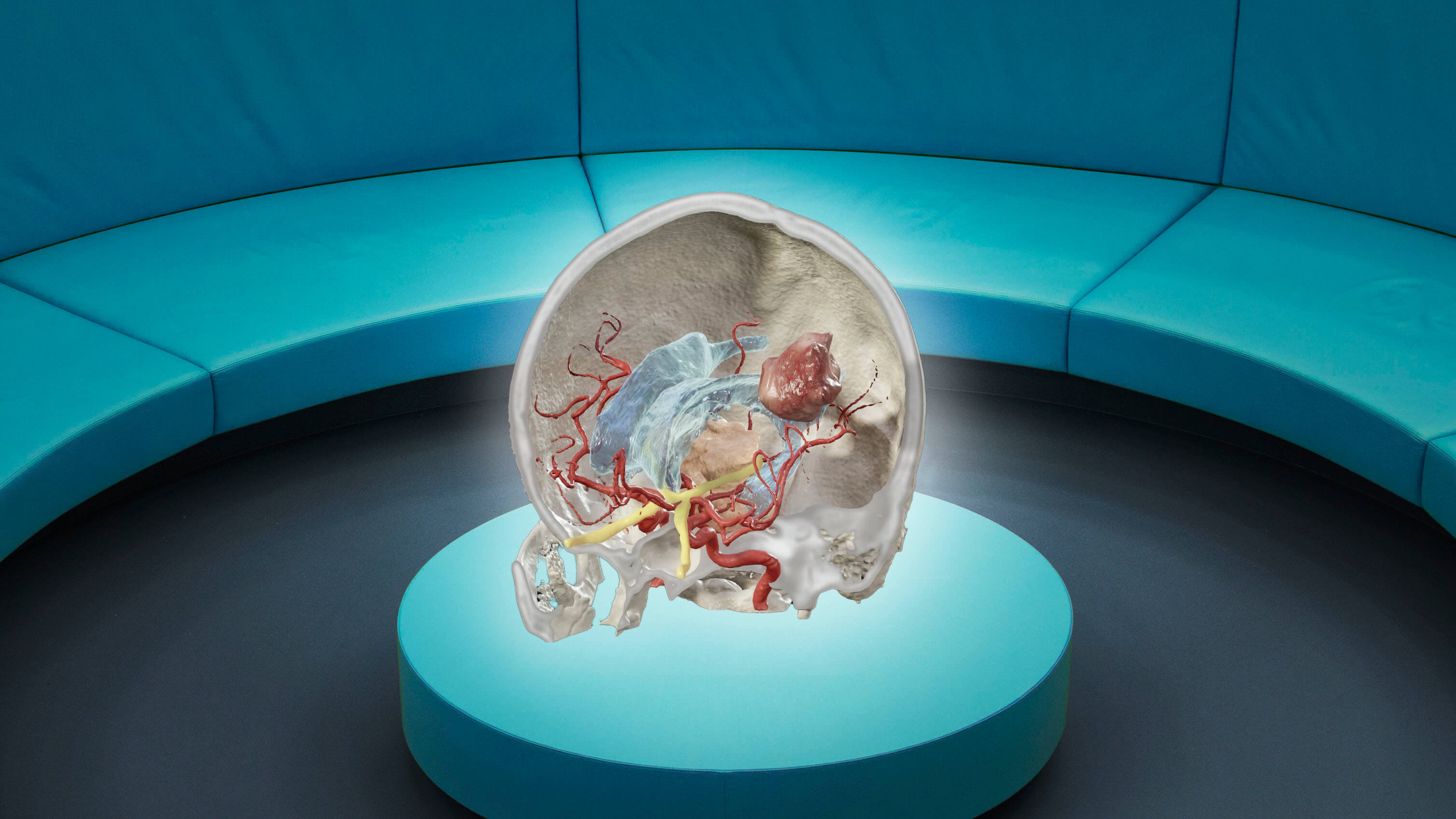 Augmented reality view of the inside of a skull to showing structures like vessels and a tumor