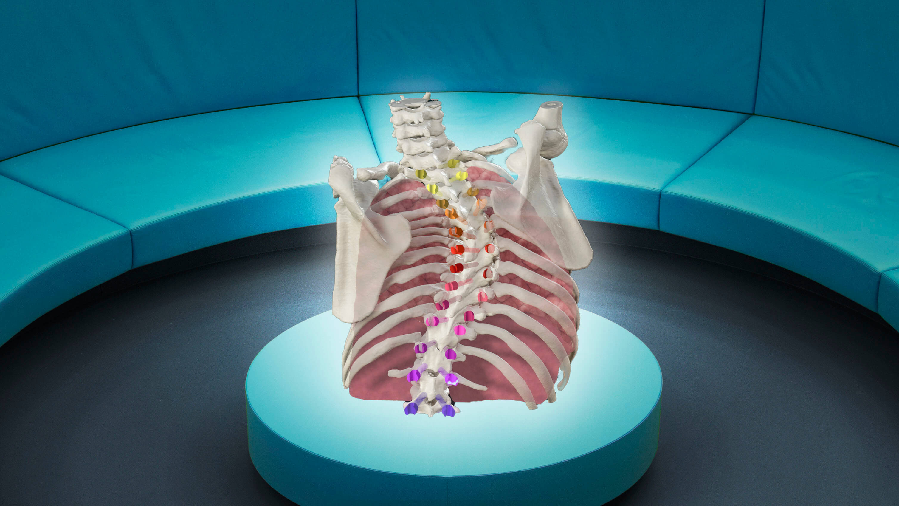 An augmented reality view of the bones of a human torso showing scoliosis