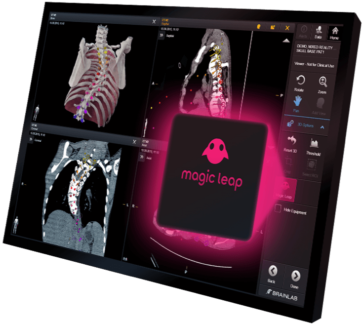Screen of Elements Viewer software showing various views of a torso with the Magic Leap button highlighted in pink