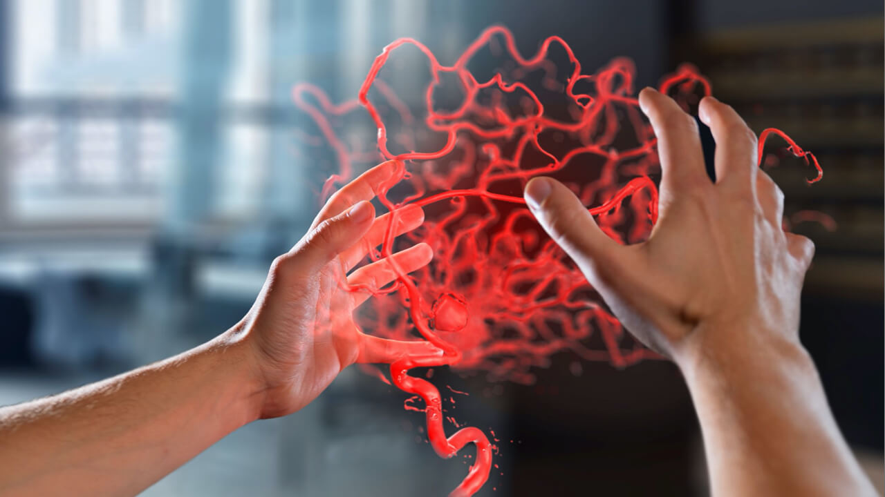 Two hands interact in the space in front of them with an augmented reality image of an arteriovenous malformation (shortened to: AVM)