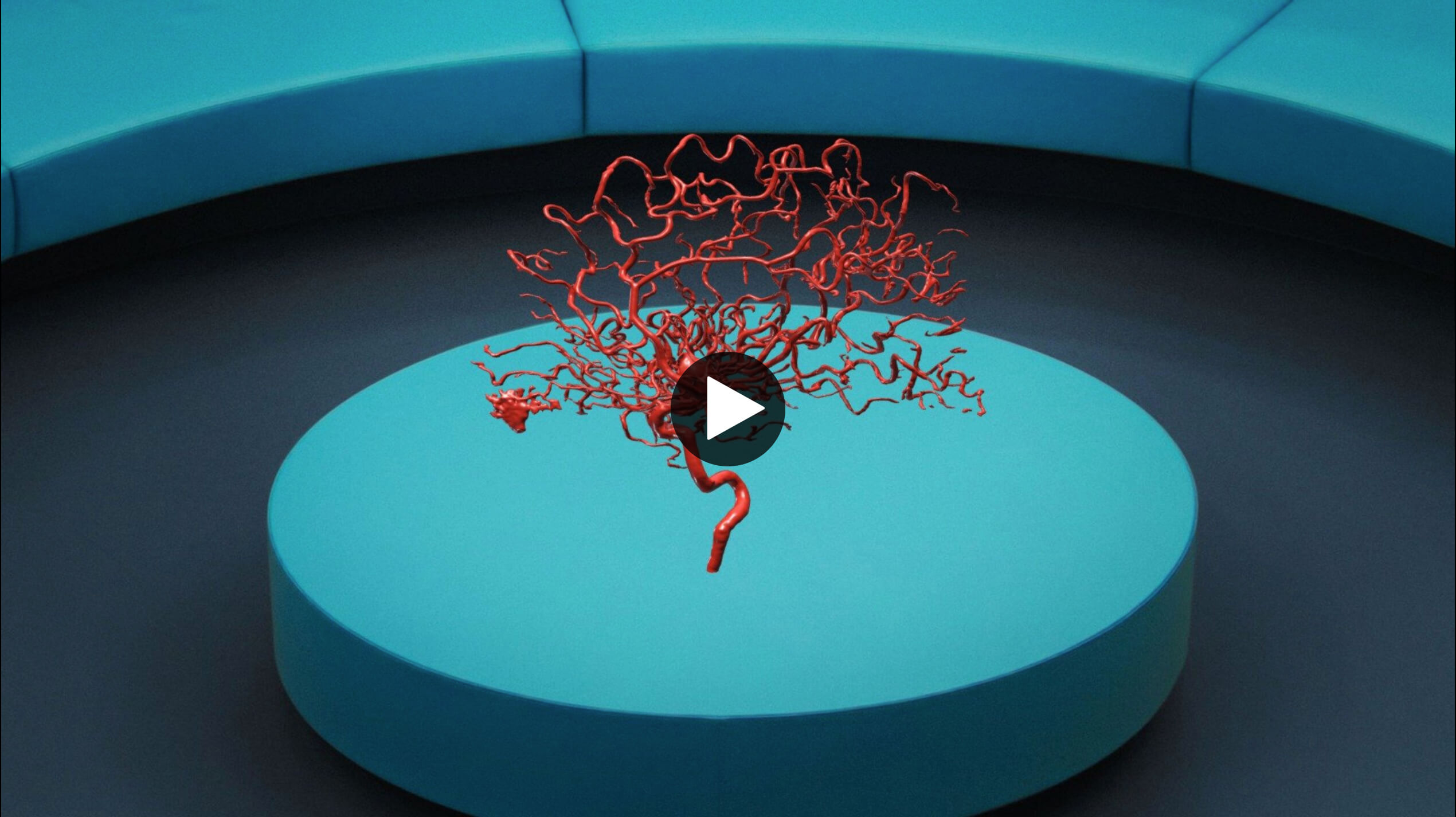 Mixed reality view of a brain aneurysm