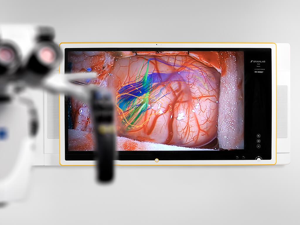 手術用顕微鏡からBuzzへのビデオルーティング
