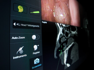 Electromagnetic ENT navigation by Brainlab with integrated HD endoscope video