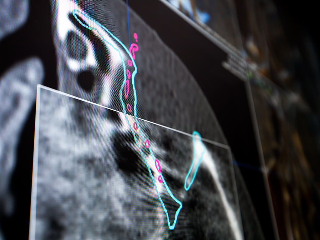 Navigation software offers automatic intraoperative image fusion