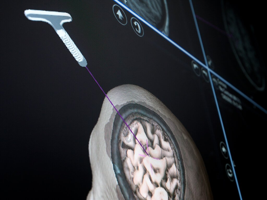 Neuronavigation screenshot showing the position of the Disposable Stylet