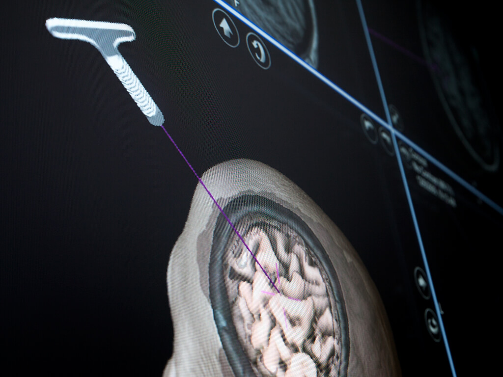Capture d'écran de neuro-navigation montrant la position du stylet à usage unique