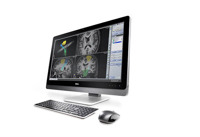 Enables fast visualization of motor and speech areas of the brain based on functional MR images