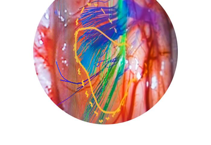 ニューロナビゲーションと顕微鏡のインテグレーション