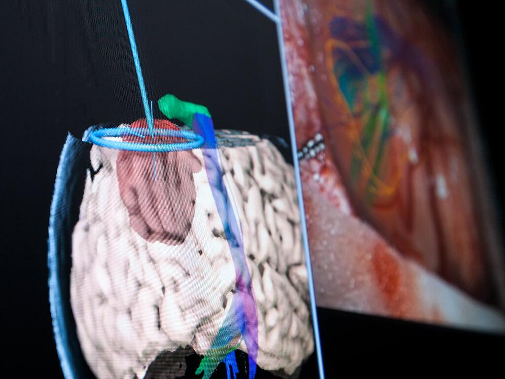 ニューロナビゲーションで顕微鏡画像を表示