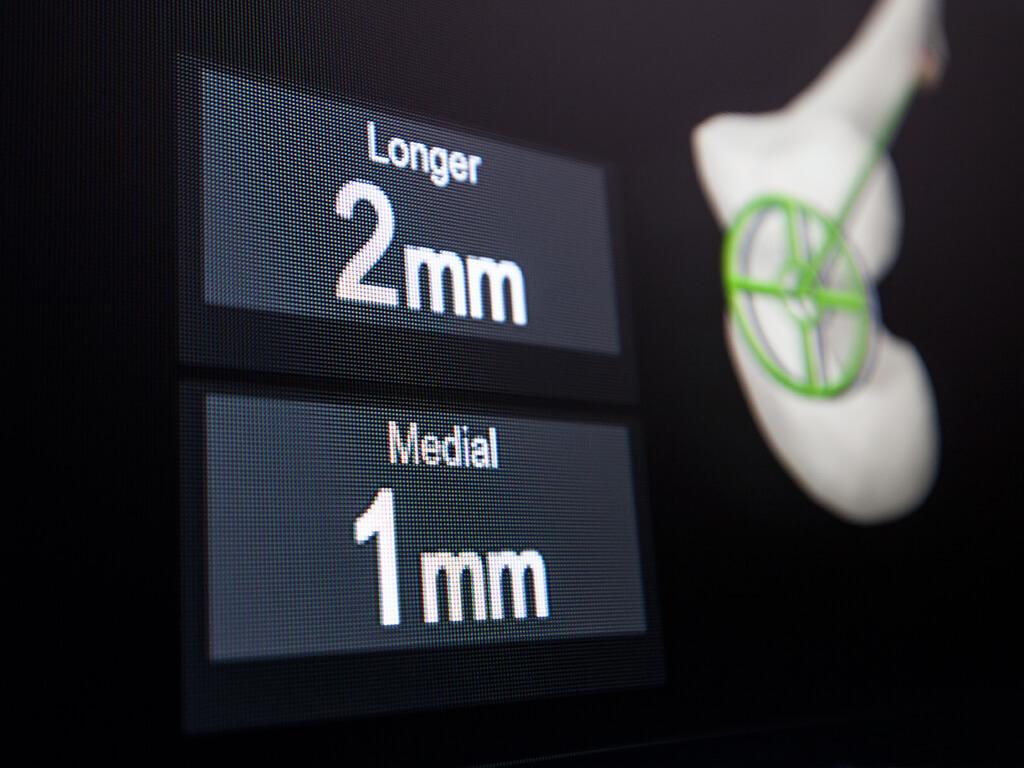 Hip Navigation Application - Brainlab
