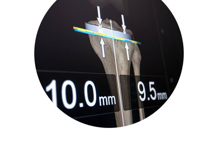 Application logicielle pour le guidage en chirurgie du genou