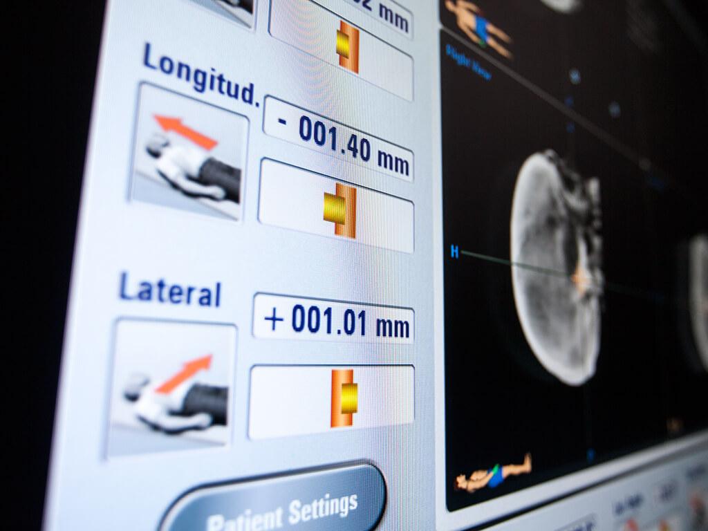 系统将即时显示偏离规定的患者位置的情况,其中包括在放射治疗/放射外科治疗过程中发生的治疗床或机架角度偏移。