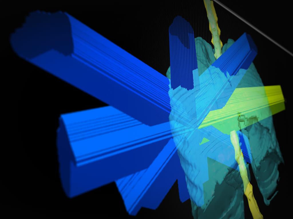 Vue 3D du plan de traitement conformationnel par champs fixes pour la tumeur pulmonaire avec iPlan RT