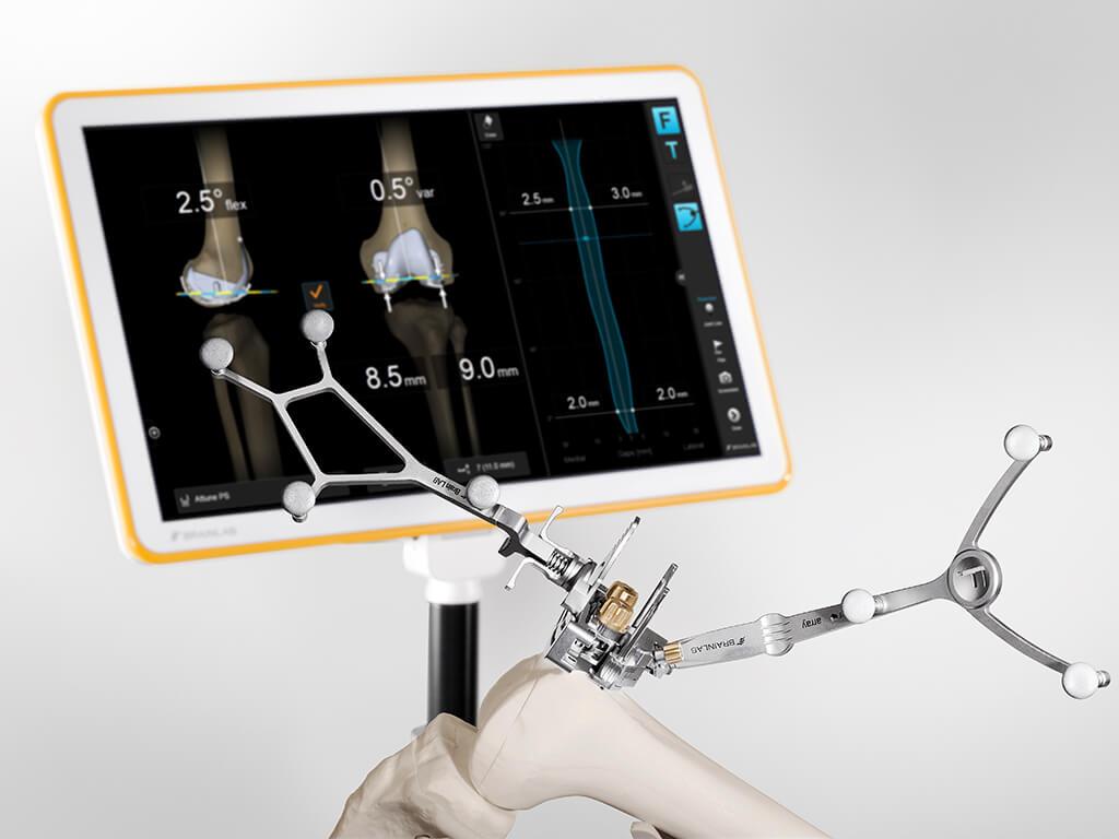 Knee Navigation Application Brainlab