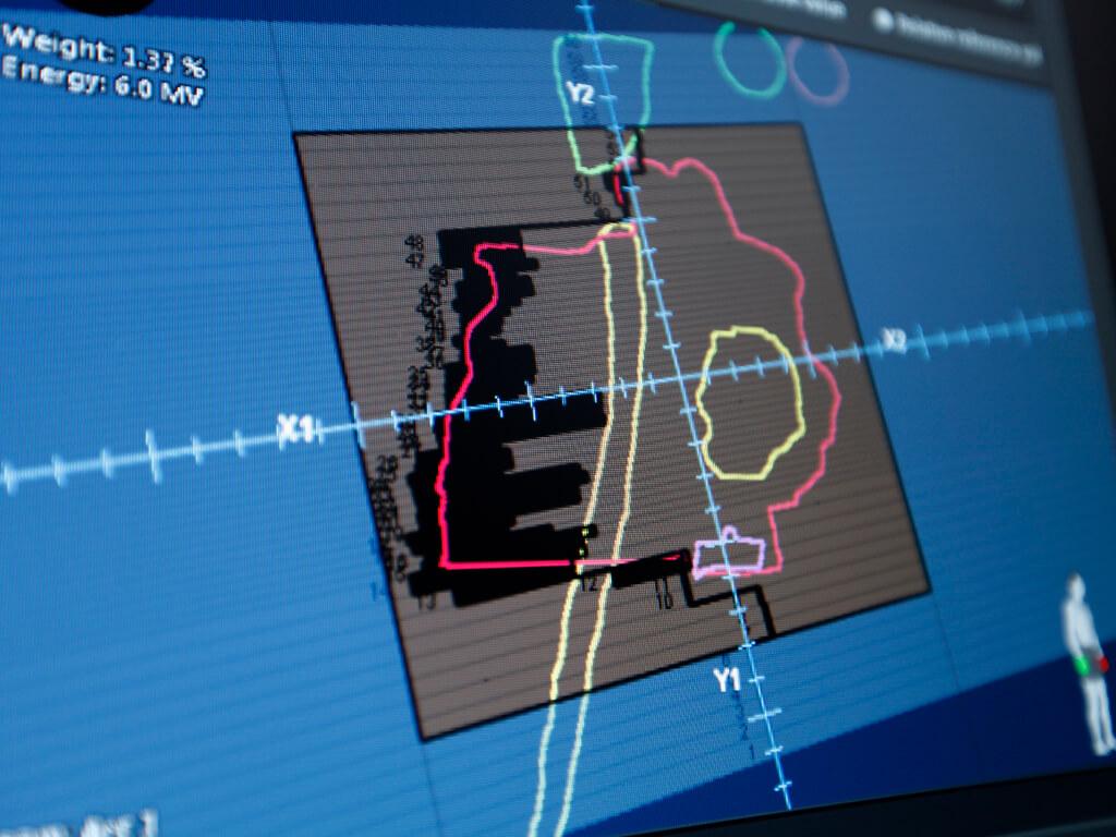 InverseArc génère des plans d'arcthérapie volumétrique modulée avec des débits de dose et des vitesses du bras de l'accélérateur fixes ou modulés