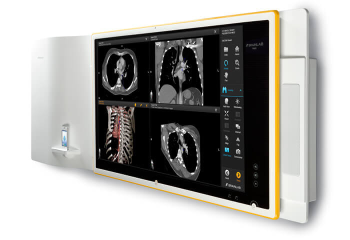 Buzz On-Wall with Brainlab DICOM Viewer