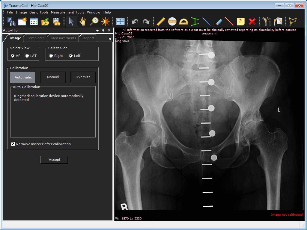 KingMark, dispositivo ajustable de calibración para ortopedia de ...
