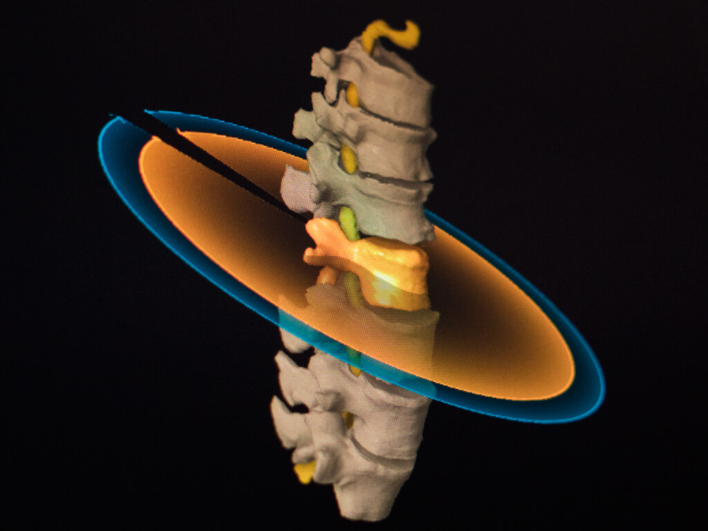 Elements Spine Srs For Management Of Spinal Lesions From Brainlab