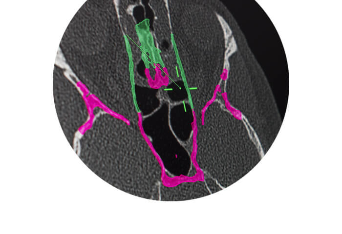 Kick EM from Brainlab offers electromagnetic surgical navigation for ENT Sinus surgery.