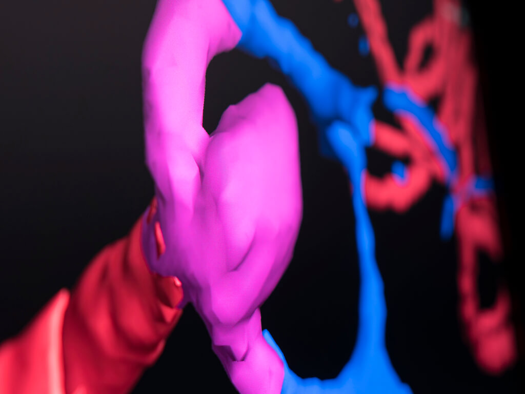 Software features improve assessment of critical areas, e.g. aneurysm, during brain surgery