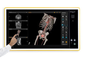 Designed specifically for surgeons, Elements Viewer is used to create, enhance and edit patient image data before, during or after surgery