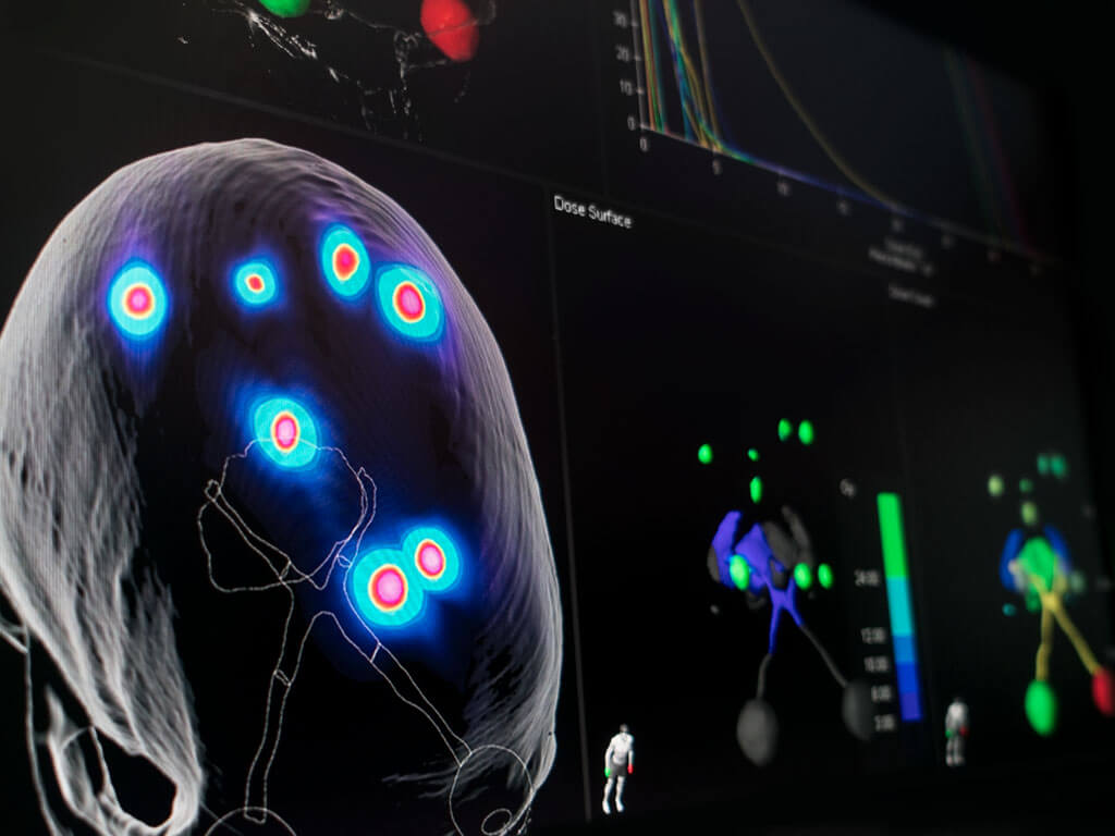 Software de planejamento de dose para metástases cerebrais