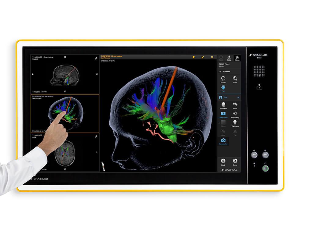 Buzz Digital O R Brainlab