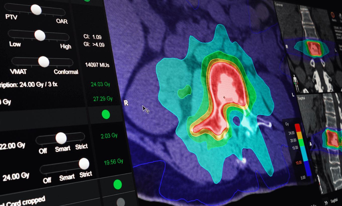 Brainlab Elements for Radiosurgery