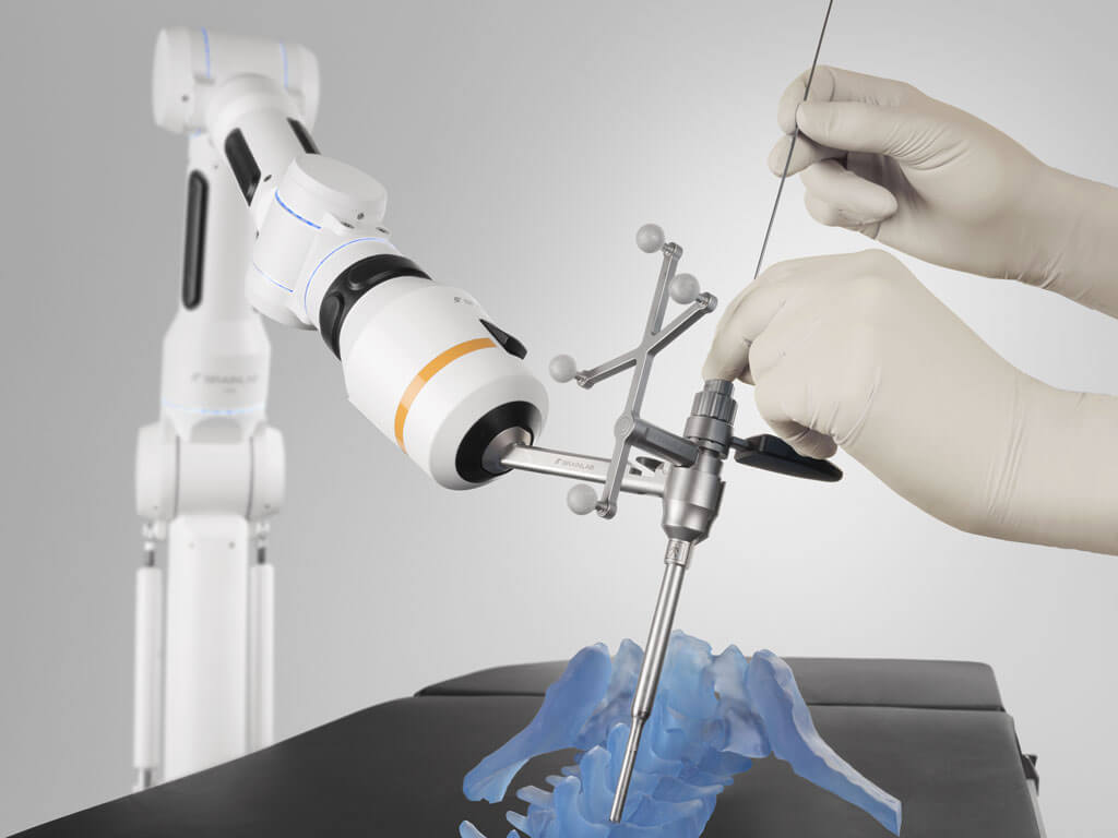 Spinal Stabilization Surgery >> Cirq™ Robotics - A portable and versatile surgical robotic assistant for O.R. - Brainlab