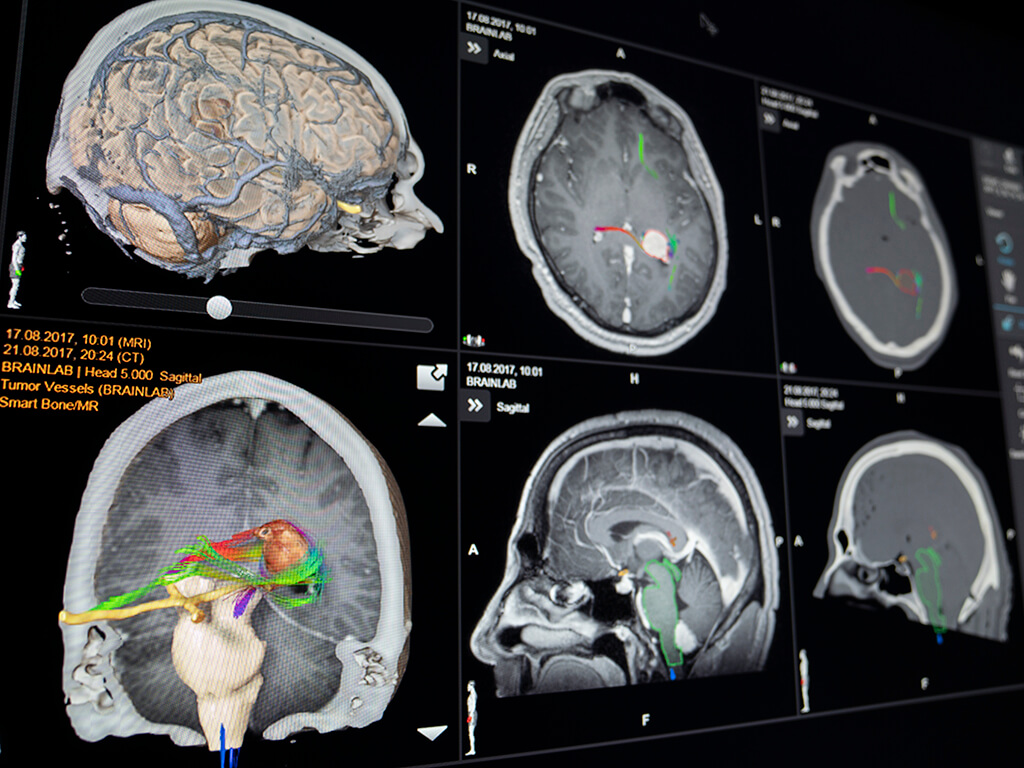 Brainlab Elements - Brainlab