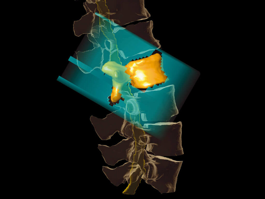 Elements Spine SRS Stereotactic Radiosurgery