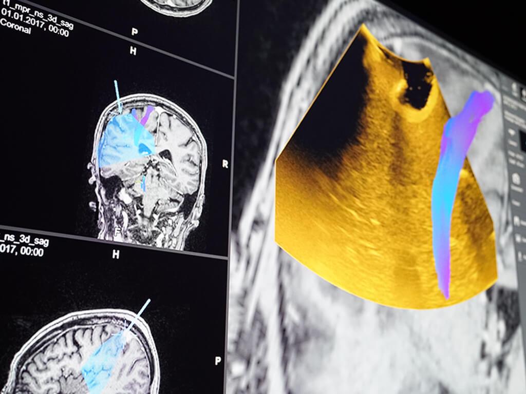 将实时 2D 超声图像叠加到术前解剖数据上,有助于进行定向和超声判读