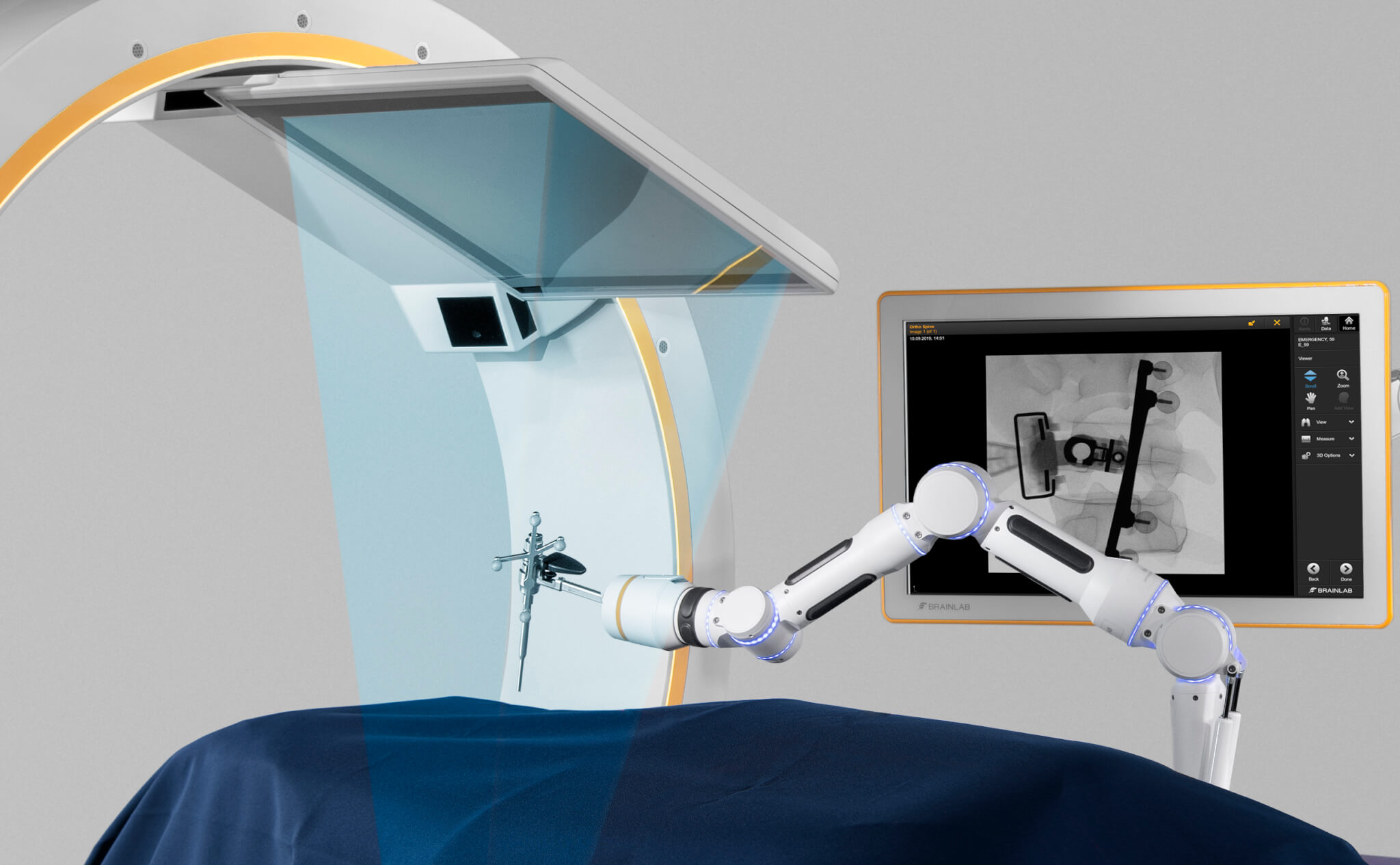 Brainlab Loop-X conebeam-ct instrument guided imaging for screw placement verification