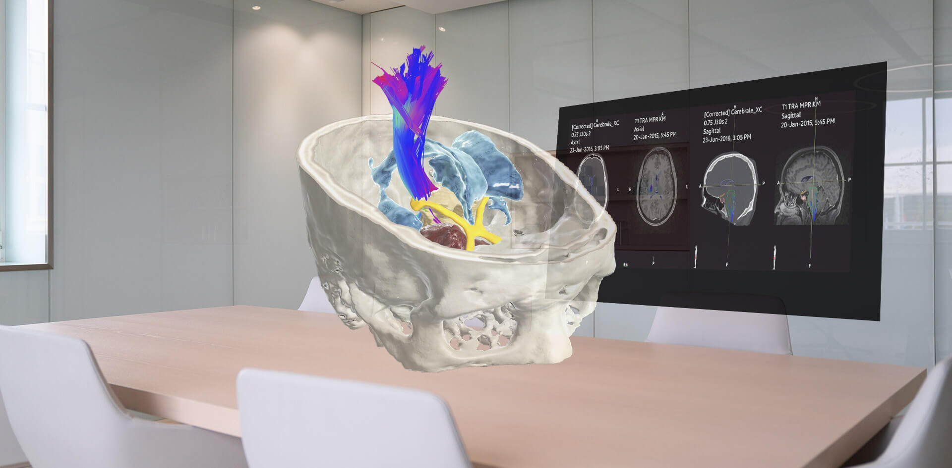 Brainlab Elements Viewer 3D 肿瘤