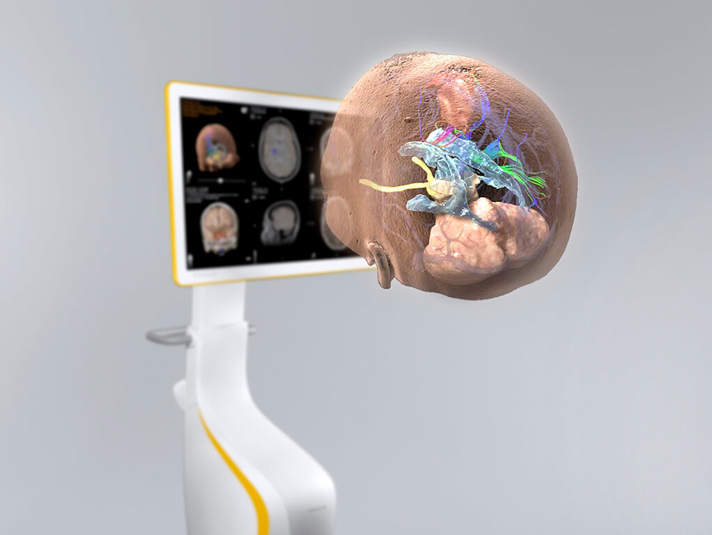 Curve_3d surgical visualization cranial