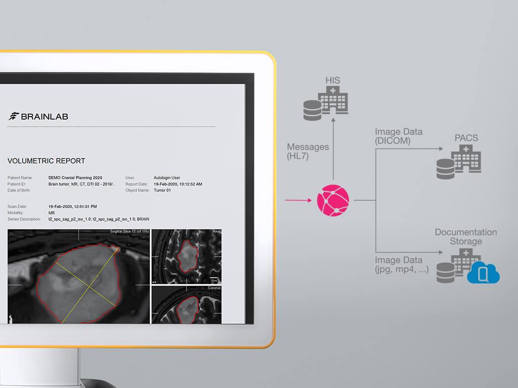 Curve_documentation en postopératoire