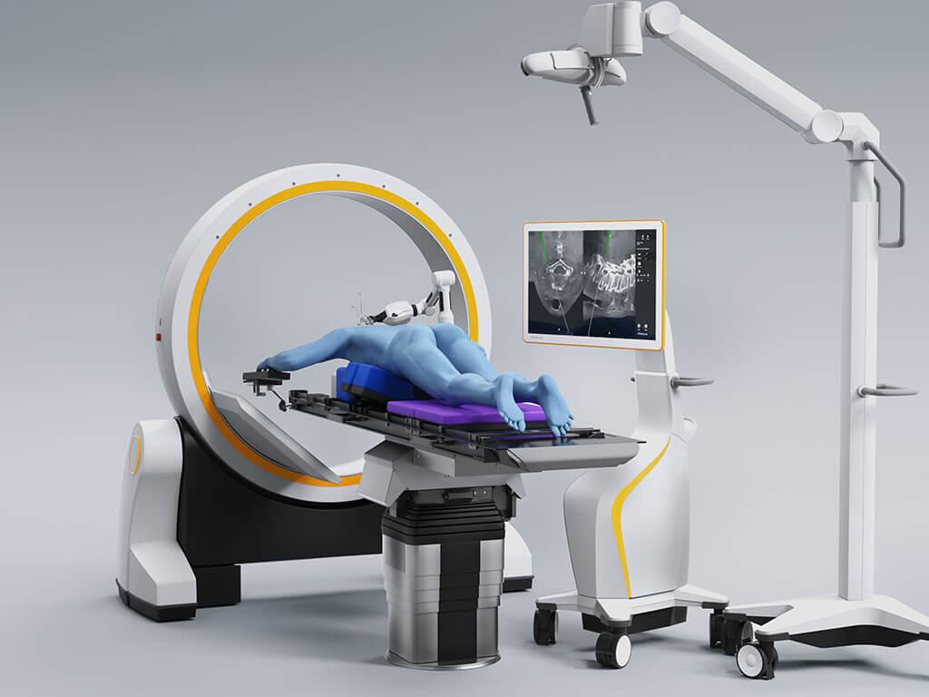 Curve_chirurgie du rachis_loop¬x_cirq