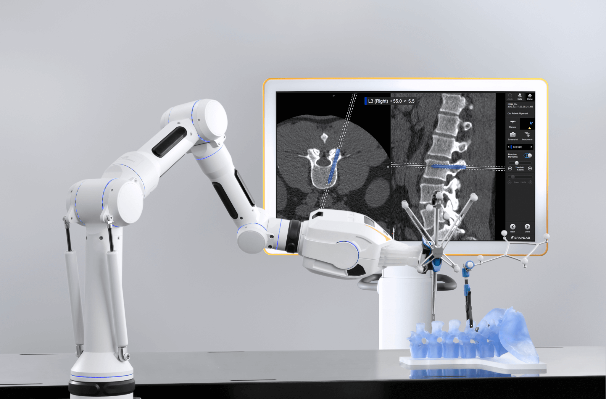 Robotische Wirbelsäulenchirurgie mit dem chirurgischen Assistenten Cirq