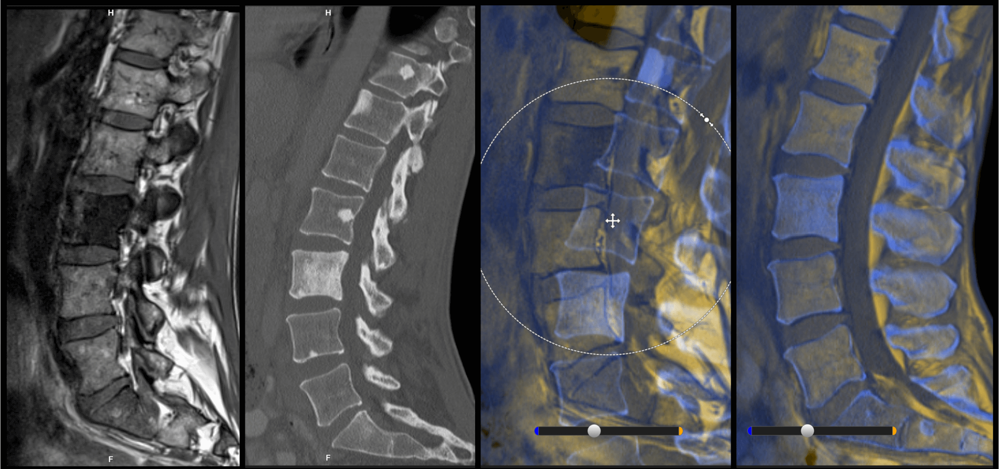 spine-image-fusion