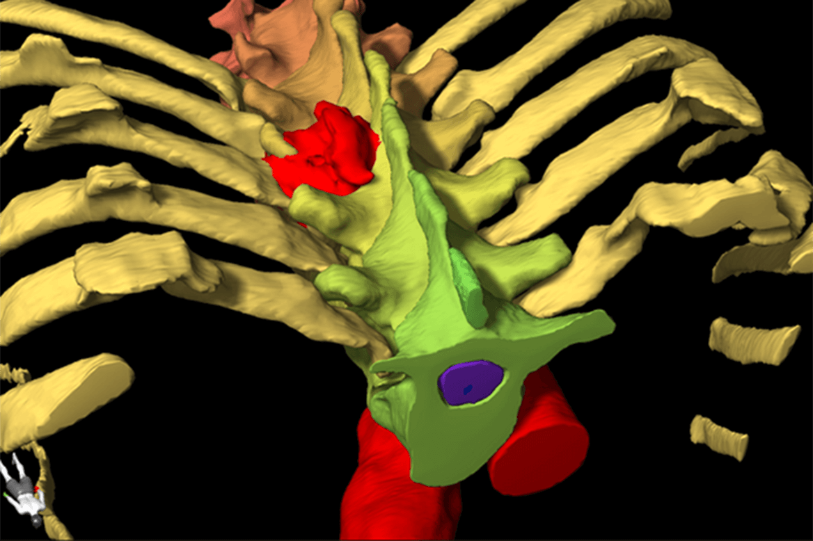 Elements Segmentation Spine radiosurgery planning software