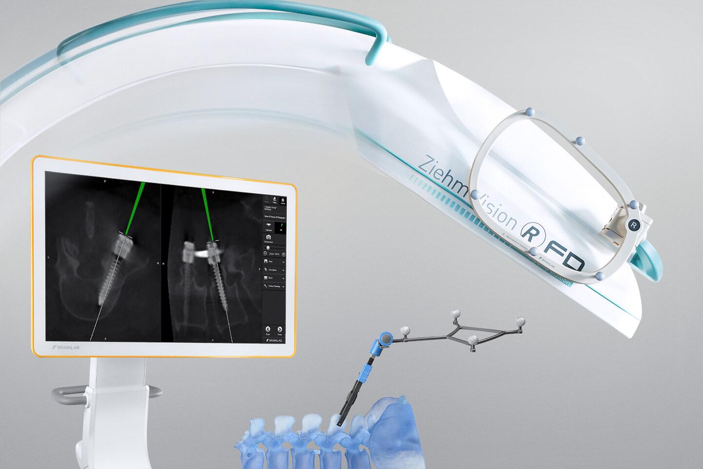 Wirbelsäulen- und Trauma-Navigation mit automatischer intraoperativer Bildregistrierung, z. B. mit Ziehm Vision RFD 3D-Scans